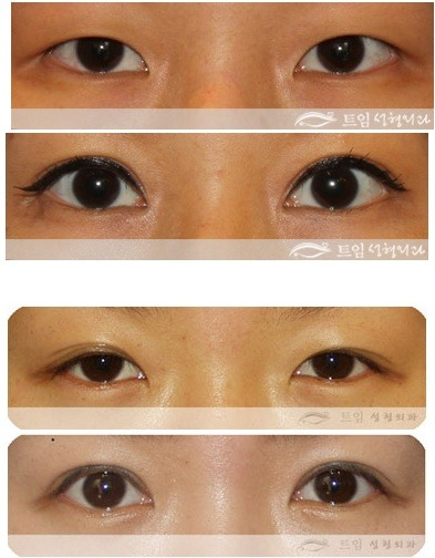 Understanding about Asian double eyelid(1)